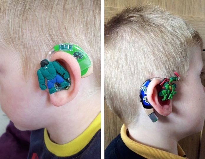 Awesome Mum Creates Superhero Children's Hearing Aids
