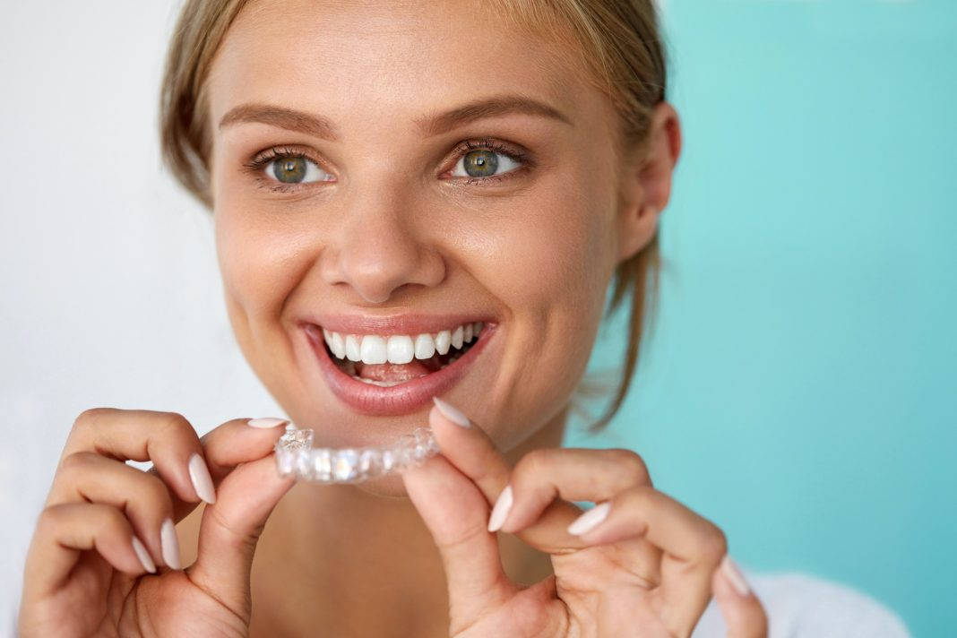 4 Modern Alternatives to Braces