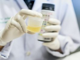4 Top Foods to Avoid Before a Urine Drug Test