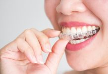 Can Invisalign Fix Crowding? Here's What You Need to Know