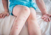 Fleas vs Bed Bugs