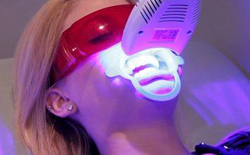 laser whitening