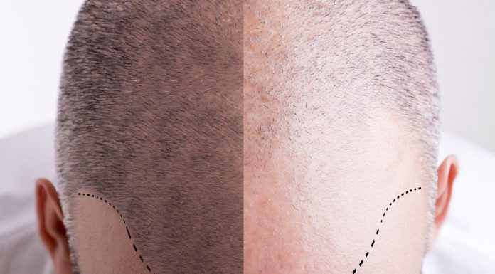 How Long Does Scalp Micropigmentation Last on Average